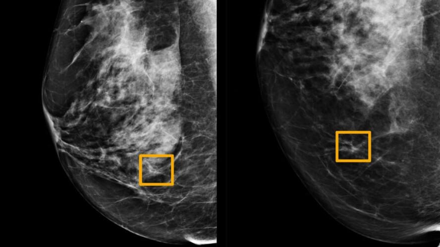 inteligencia-artificial-melhor-que-radiologistas-a-detetar-cancro